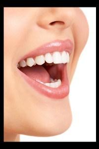 teeth whitening regina