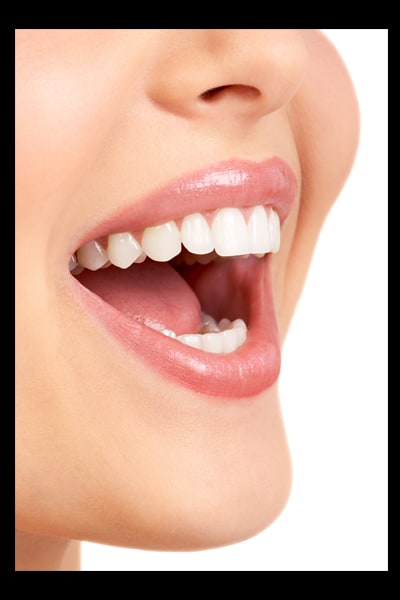 teeth whitening questions from Regina clients