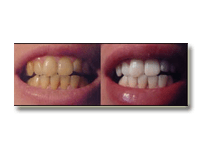 Teeth Whitening Regina Angela A Untouched Photo