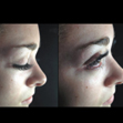 Eyelash Extensions Regina Before and After Pictures